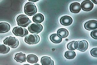 赤血球&ソマチッド写真4
