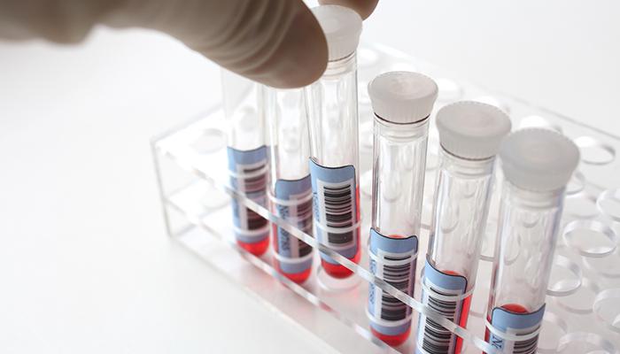 【Vol.169】血液1滴で13種のがんを早期発見